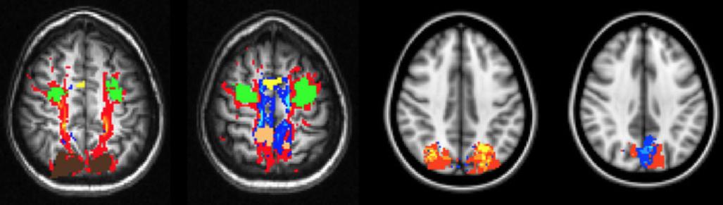 Four brain image scans of rhesus monkeys in Yuri Saalmann's neuroscience lab (courtesy Y. Saalmann lab).